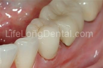 Dr. Sherrard restored the teeth with all-ceramic crowns to a naturally white smile.