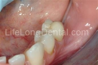 Decay removed and beautiful ceramic crowns placed.
