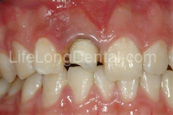 Implant Case: Front tooth with previously placed crown that broke off.