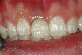 Implant with All-Ceramic Crown.