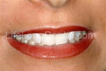 Teeth whitening at Life Long Dental in Silverdale