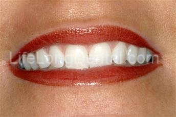 After in-office teeth whitening at Long Life Dental.