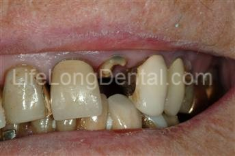 This patient presented with a broken tooth and decay on the adjoining tooth.