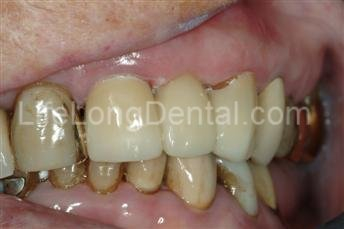 Decay removed and crowns placed on the two teeth around the space with an artificial tooth to replace the missing one.