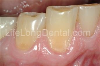This patient had yellowing and misshapen teeth.
