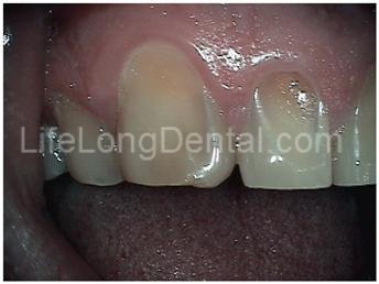 This patient had bonding applied to a cracked tooth—creating an unsightly bulge on side.