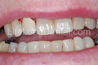 They were improved with tooth colored fillings placed in our office with little to no removal of tooth structure.
