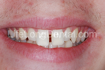 This patient was preparing for a wedding and wanted to improve his smile for the family wedding photos.