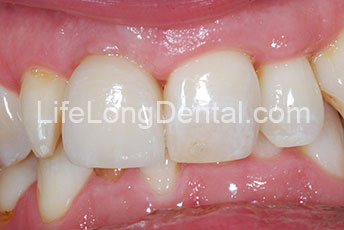 All ceramic crown with zirconia abutment (after).