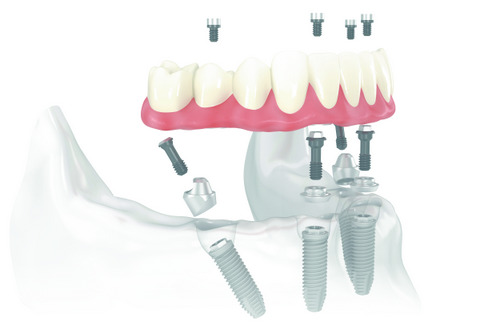 All on 4 dental implants diagram from dentist office in Silverdale, WA.