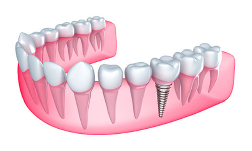 Dental implant diagram from dentist office in Silverdale, WA.