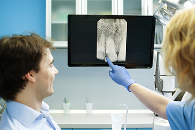 Digital X-Rays: Why They Are Important